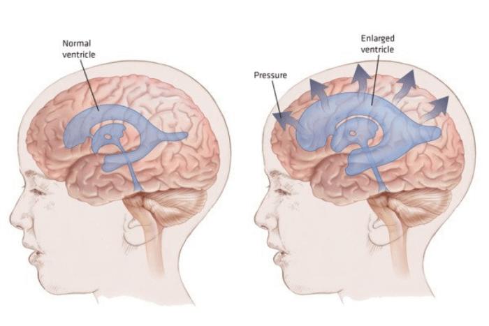 Δύο ανθρώπινα κεφάλια που μέσα φαίνονται οι εγκέφαλοι πως είναι ένας κανονικός και πως ένας αρκετά μεγαλύτερος.