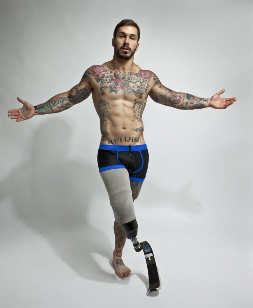 Το μοντέλο Alex Minsky, ήταν το πρώτο που έδωσε σεξουαλική χροιά στην αναπηρία του με μια σειρά φωτογραφιών απροσποίητα αισθησιακών