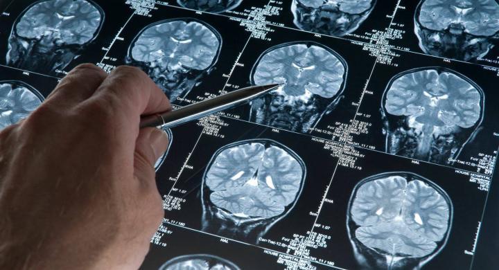 εικόνα από εγκεφαλογράφημα