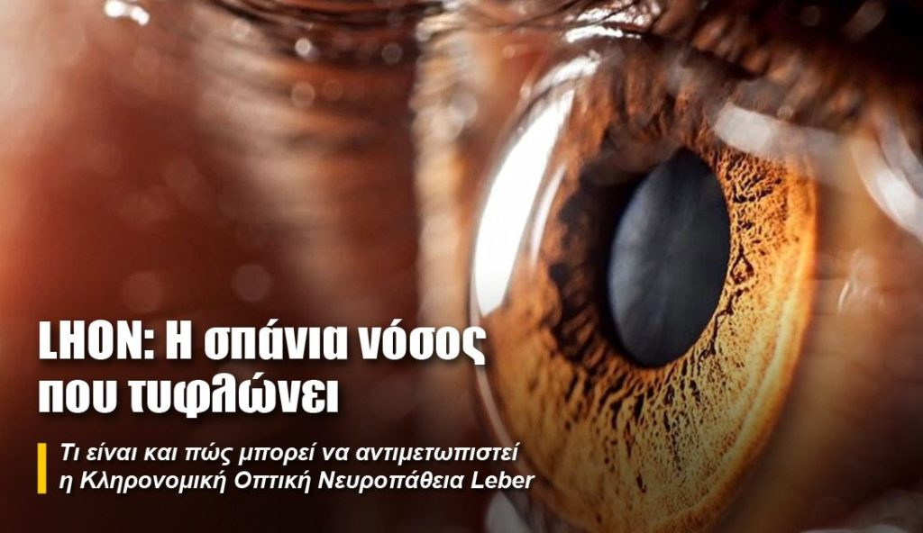 κοντινό σε μάτι