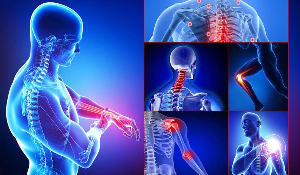 σκελετός ανθρώπου που δείχνει σε ποια σημεία πονάνε οι αρθρώσεις