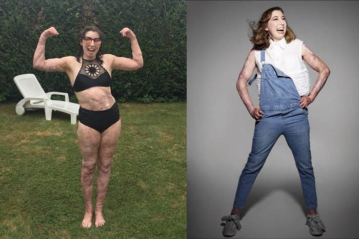 Catrin Pugh με μαγιό φαίνεται το σώμα της με τα εγκαύματα και με ρούχα