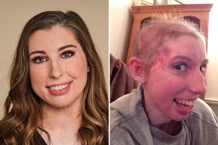 Catrin Pugh το πρόσωπό της τον πρώτο καιρό μετά το ατύχημα και σήμερα