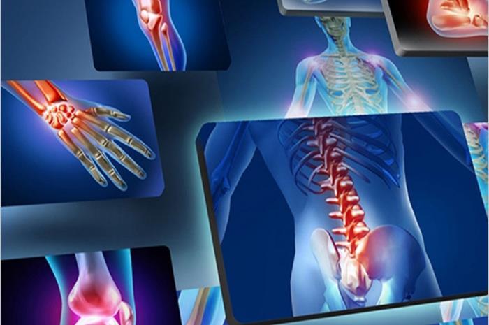 μυοσκελετικές παθήσεις: ανθρώπινος σκελετός σε μορφή ακτινογραφίας