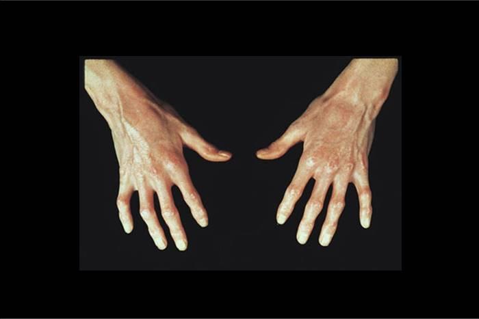 δύο χέρι ανθρώπου που πάσχει από σκληρόδερμα