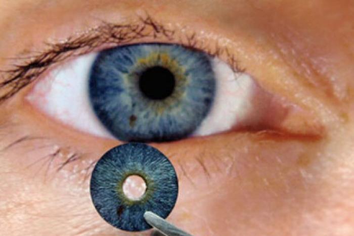 μάτι και τεχνητή ίριδα