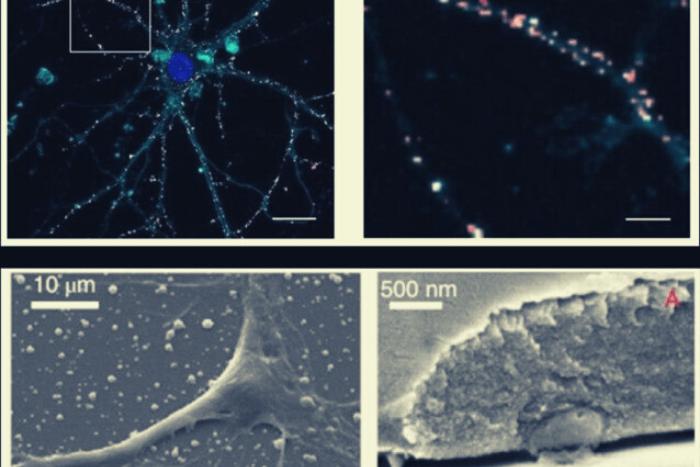 εικόνα μικροσκοπίου φθορισμού που δείχνει νανοσωματίδια (με κόκκινο χρώμα) που εναποτίθεται στις νευρωνικές μεμβράνες (σε σκούρο μπλε) χωρίς να εισέλθει στα κύτταρα.
