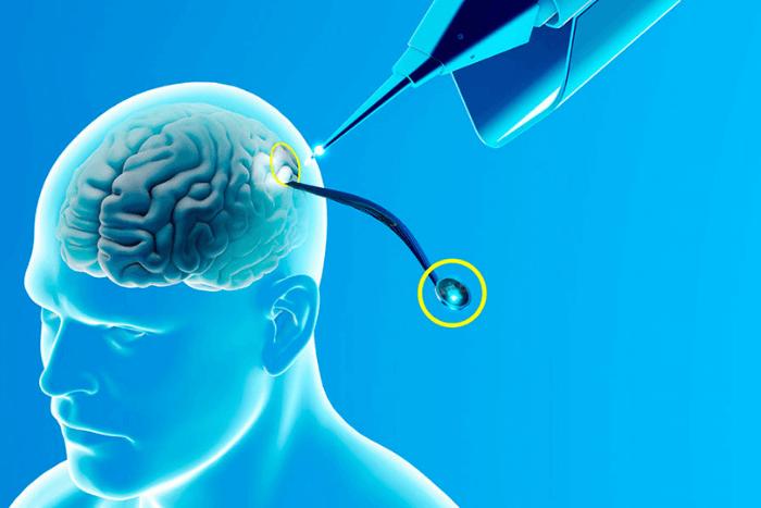 μηχάνημα τοποθετεί τσιπ στον εγκέφαλο