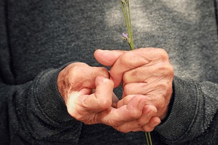 κοντινό σε χέρια ρευματοπαθή
