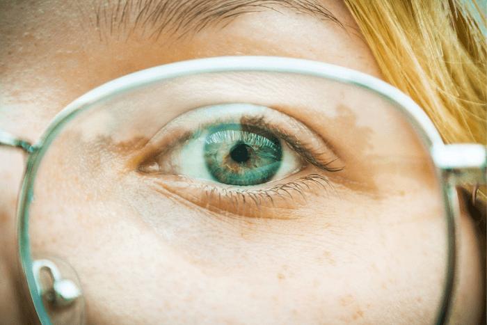Κοντινό σε μάτι ατόμου που φοράει γυαλιά για πρόβλημα όρασης