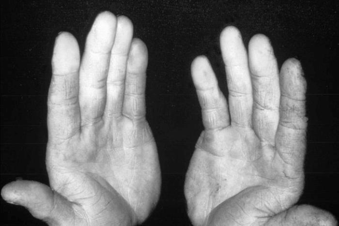 Δύο χέρια ανοιχτές παλάμες-ασθενής με σκληρόδερμα