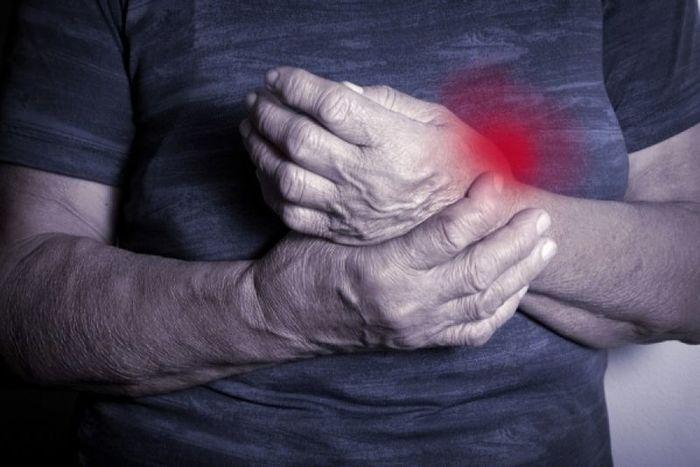 χέρια επηρεασμένα από ρευματική πάθηση