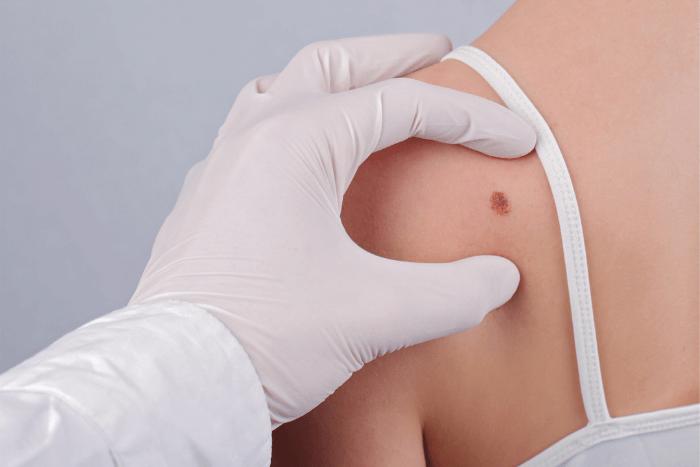 Χέρι γιατρού με χειρουργικό γάντι που εξετάζει μελάνωμα σε πλάτη γυναίκας