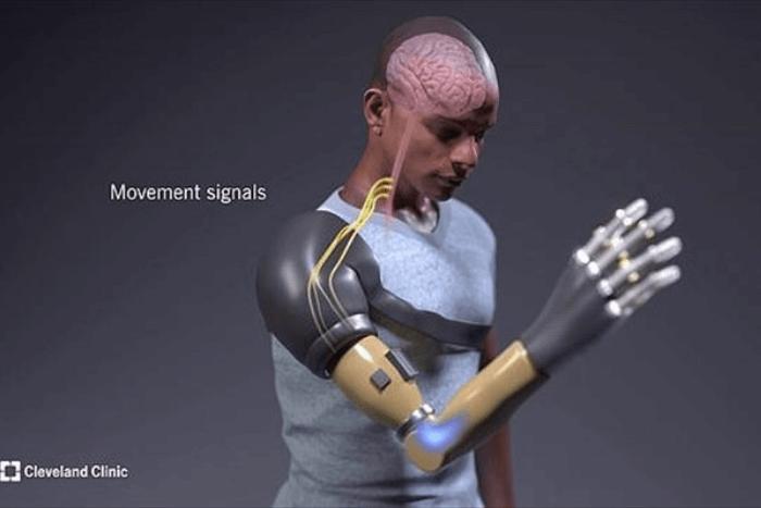 Βλέπουμε προσομοίωση ενός ανθρώπου να φοράει το τεχνητό χέρι και τα νεύρα που στέλνουν σήματα από τον εγκέφαλο στο τεχνητό χέρι