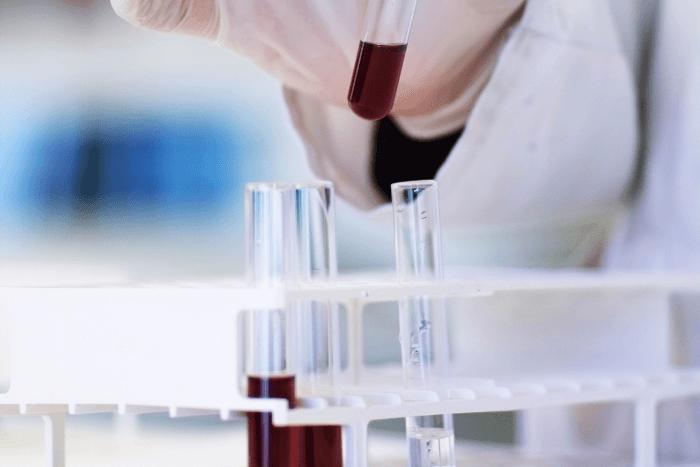 φιαλίδια με αίμα που κρατάει επιστήμονας-ερευνητής σε εργαστήριο